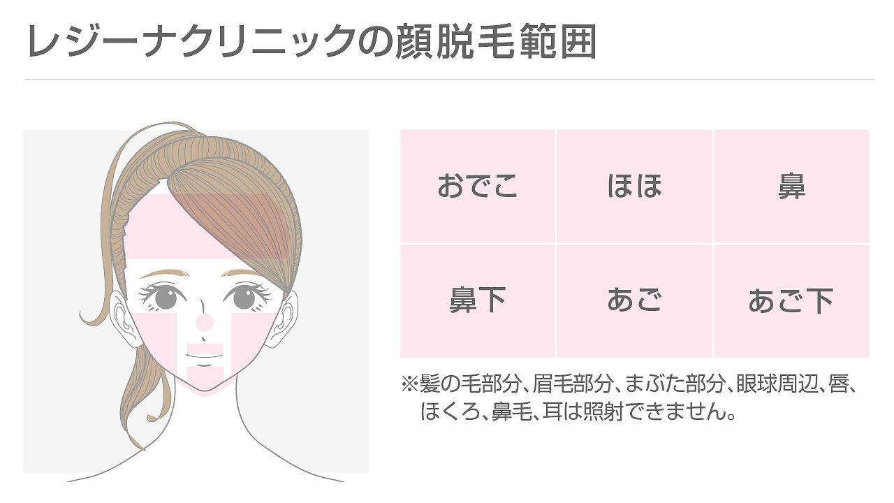 レジーナクリニックの顔脱毛の範囲