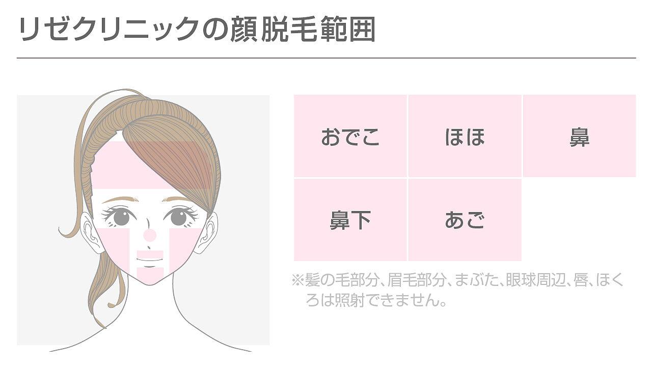 リゼクリニックの顔脱毛の範囲